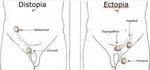 La Criptorquidia es la falta de descenso de los testículos a su posición correcta en el escroto