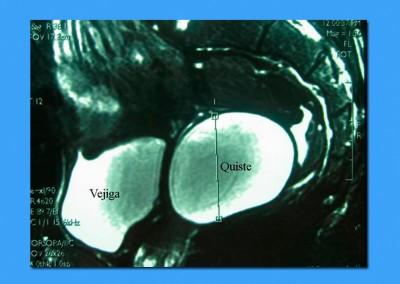 Quiste-vesicula-seminal