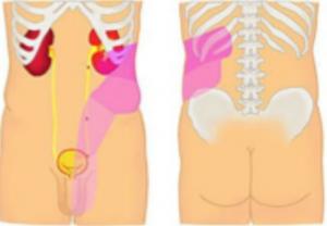 Dolor lumbar producido por piedras en riñón