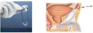 Incontinencia urinaria : sistema Remeex