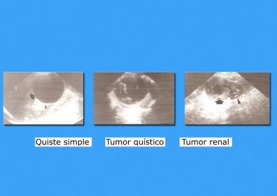 Quiste vs. Tumor